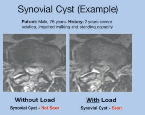 Synovial Cyst Example