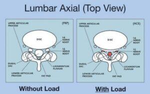 Lumbar Axial Top View