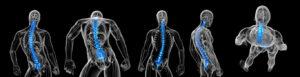 Medical legal spine imaging tampa